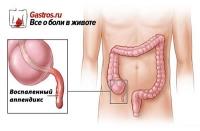Как определить аппендицит: где и с какой стороны он находится